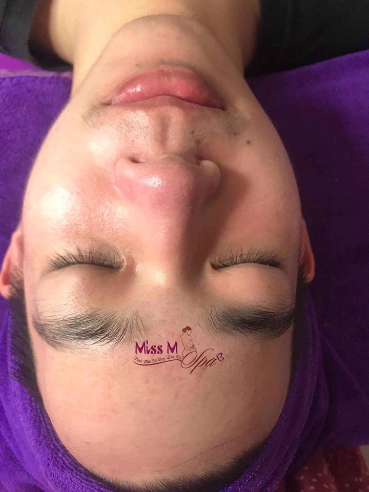 Miss M Spa địa chỉ điều trị mụn, điều trị sẹo rỗ tốt nhất tại Pleiku, Gia Lai